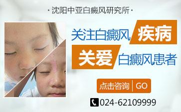 沈阳白癫疯医院讲解儿童白斑的怎么治疗效果好